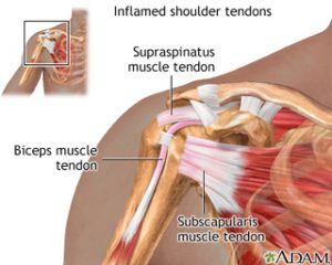 crossfit, overhead activity and the problematic shoulder - part 1, Skeleton